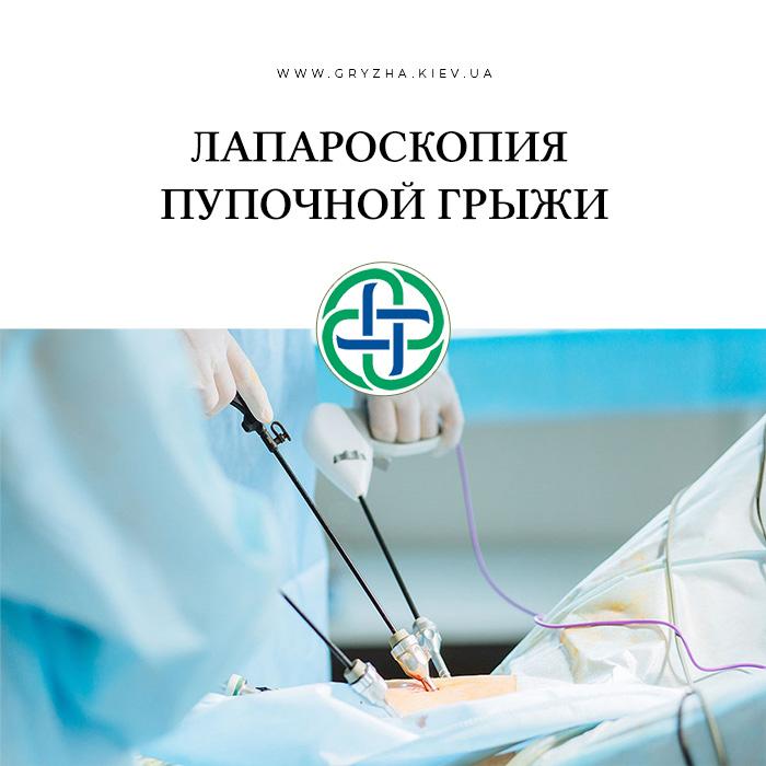 Лапароскопия пупочной грыжи