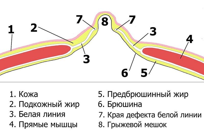 диастаз мышц живота фото