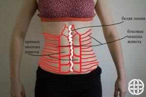 диастаз прямых мышц живота упражнения