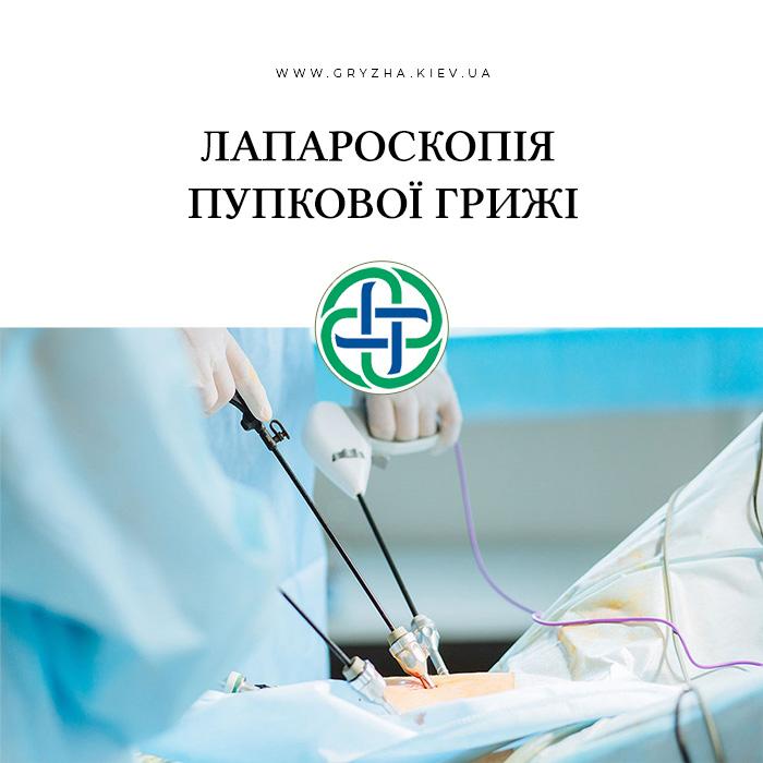 лапароскопія пупкової грижі